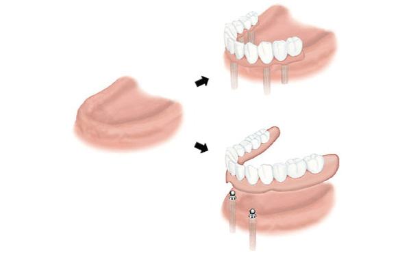 インプラント治療(すべての歯の場合)