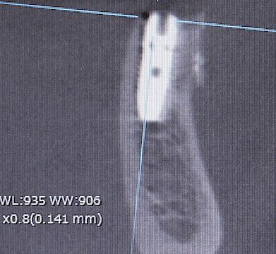19022308 術後CTのコピー5