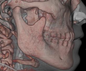 CT軟組織あり