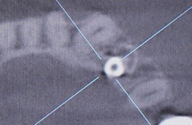 19022308 術後CTのコピー4